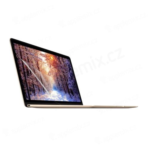 "Fólie ENKAY pro Apple MacBook Retina 12"" (2015) - čirá"